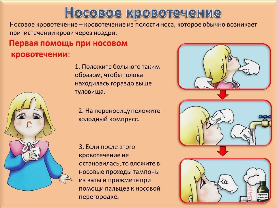 Кровь из носа у взрослого, у детей, при беременности, причины, симптомы, что делать? носовое кровотечение первая помощь.  :: polismed.com