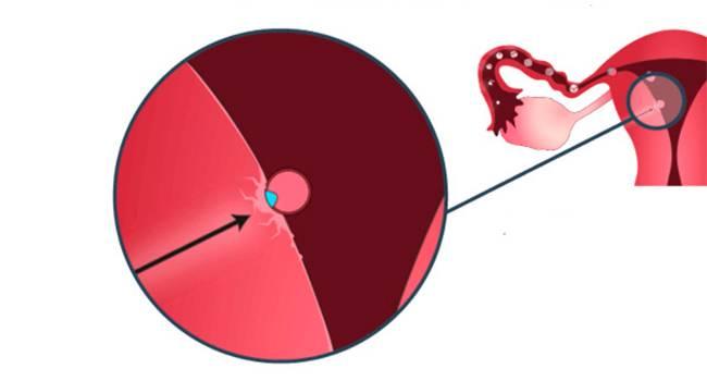 Кровопотеря и кровянистые выделения: причины, опасности и способы устранения * клиника диана в санкт-петербурге
