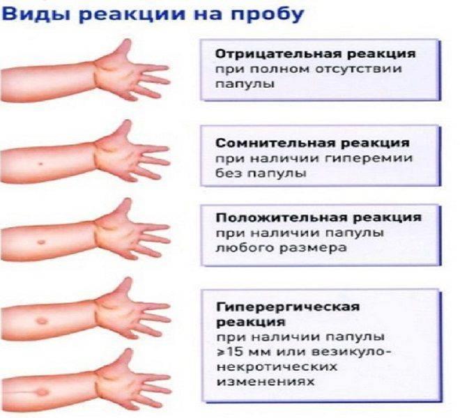 Диагностика туберкулеза: проба манту или диаскинтест