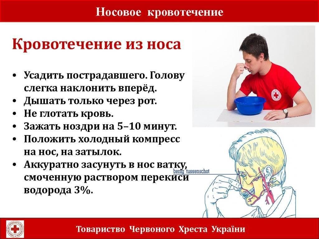 Кровотечение после лечения антикоагулянтами | университетская клиника