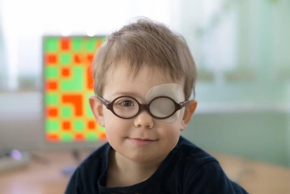 Амблиопия или «ленивый глаз»/детские заболевания - «глазцентр» — микрохирургия глаза в ульяновске