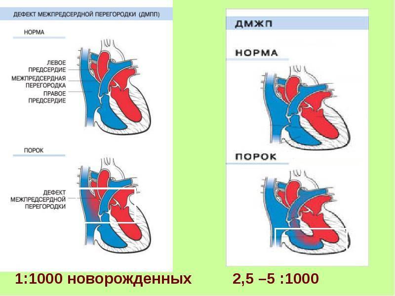 Дефекты межпредсердной перегородки (дмпп) - кардиолог - сайт о заболеваниях сердца и сосудов