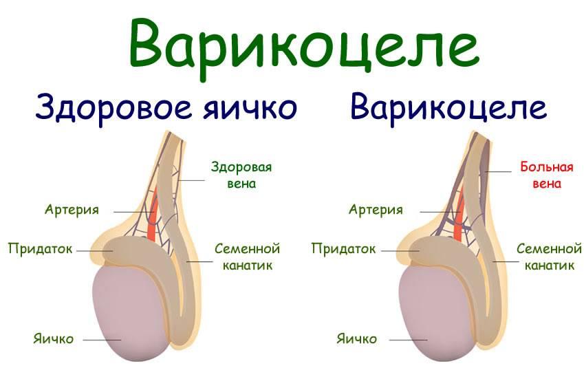 Варикоцеле (варикоз вен яичка): диагностика и лечение