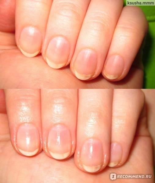 Здоровье ногтей в период беременности — профилактика и лечение