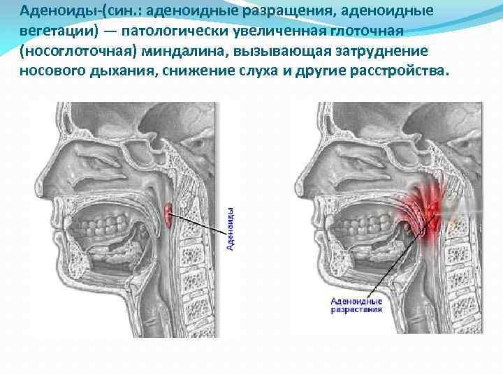 Рахит. диагностика, лечение и профилактика