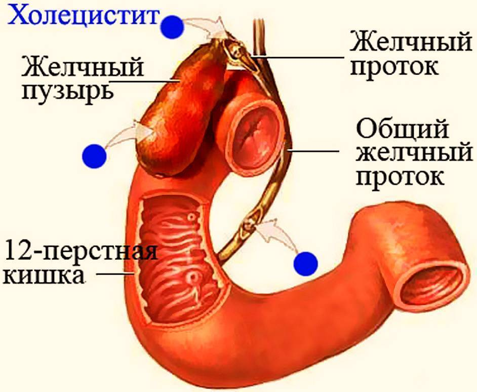 Хронический холецистит