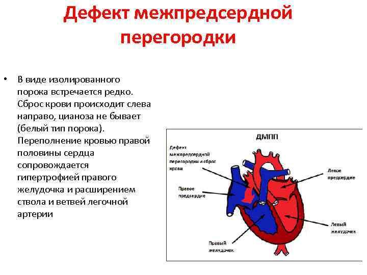 Врождеhhые пороки сердца